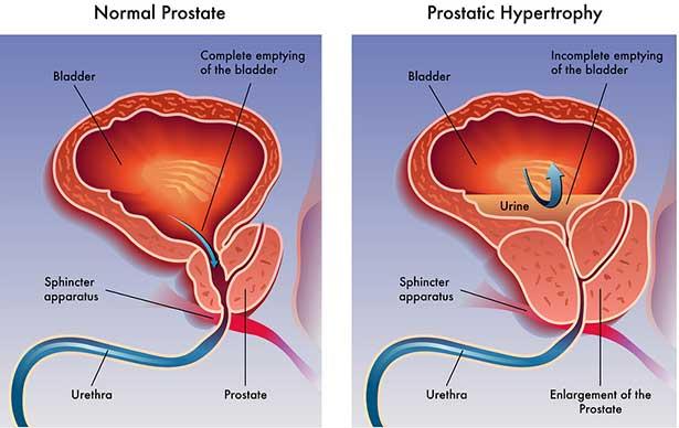 Dünya prostat günü